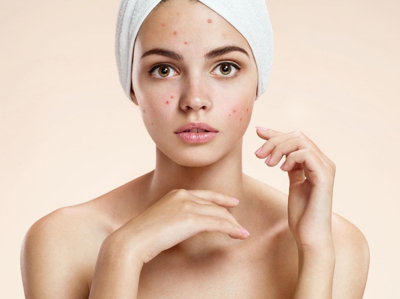 Hvad man skal bruge, og hvordan man bærer sig ad med at pleje hud påvirket af akne?